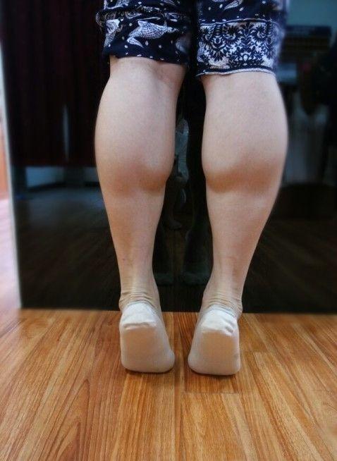 小腿神经阻断术